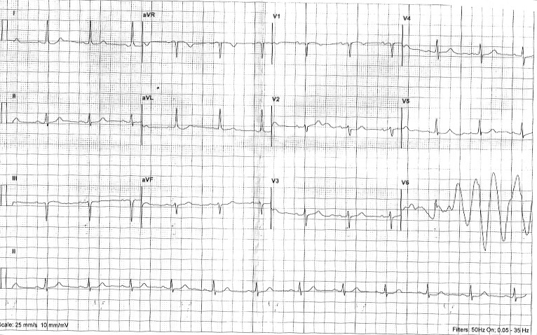 ECG Class - Keeping ECGs Simple: Pathological Q waves - or not?