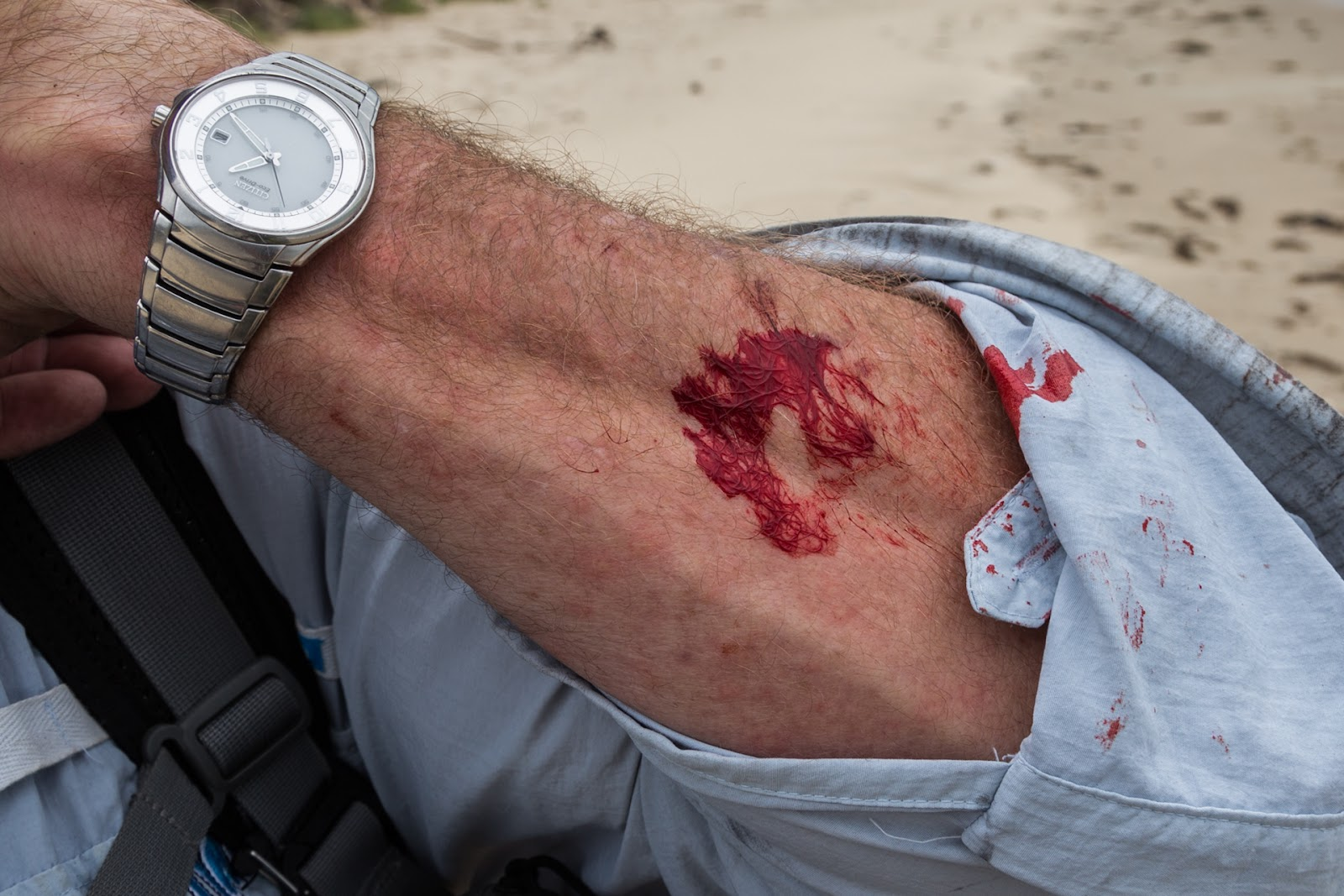 bleeding arm from cut whilst hiking