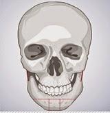 T osteotomy untuk koreksi tulang wajah di bedah plastik Wonjin