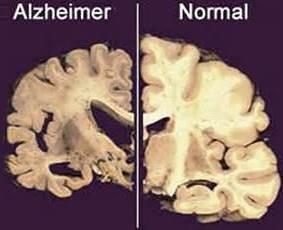 Penyakit Alzheimer ; http://id.penyakit.dorar.info/