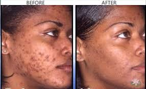 Eliminating Acne Scars