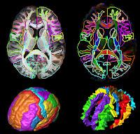 Brain Imaging3