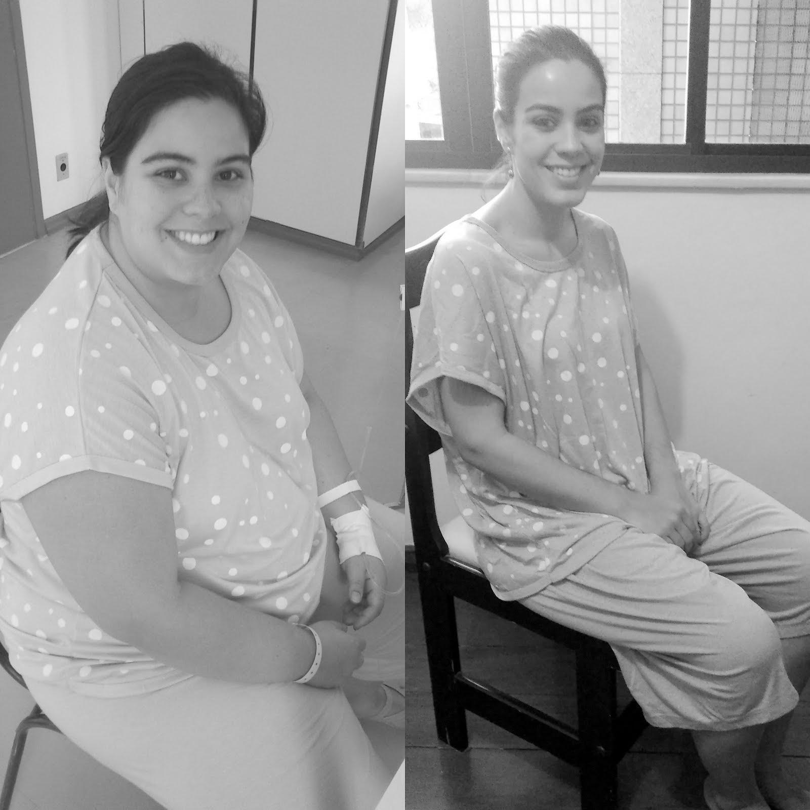 Carol Rodrigues - Antes e Depois