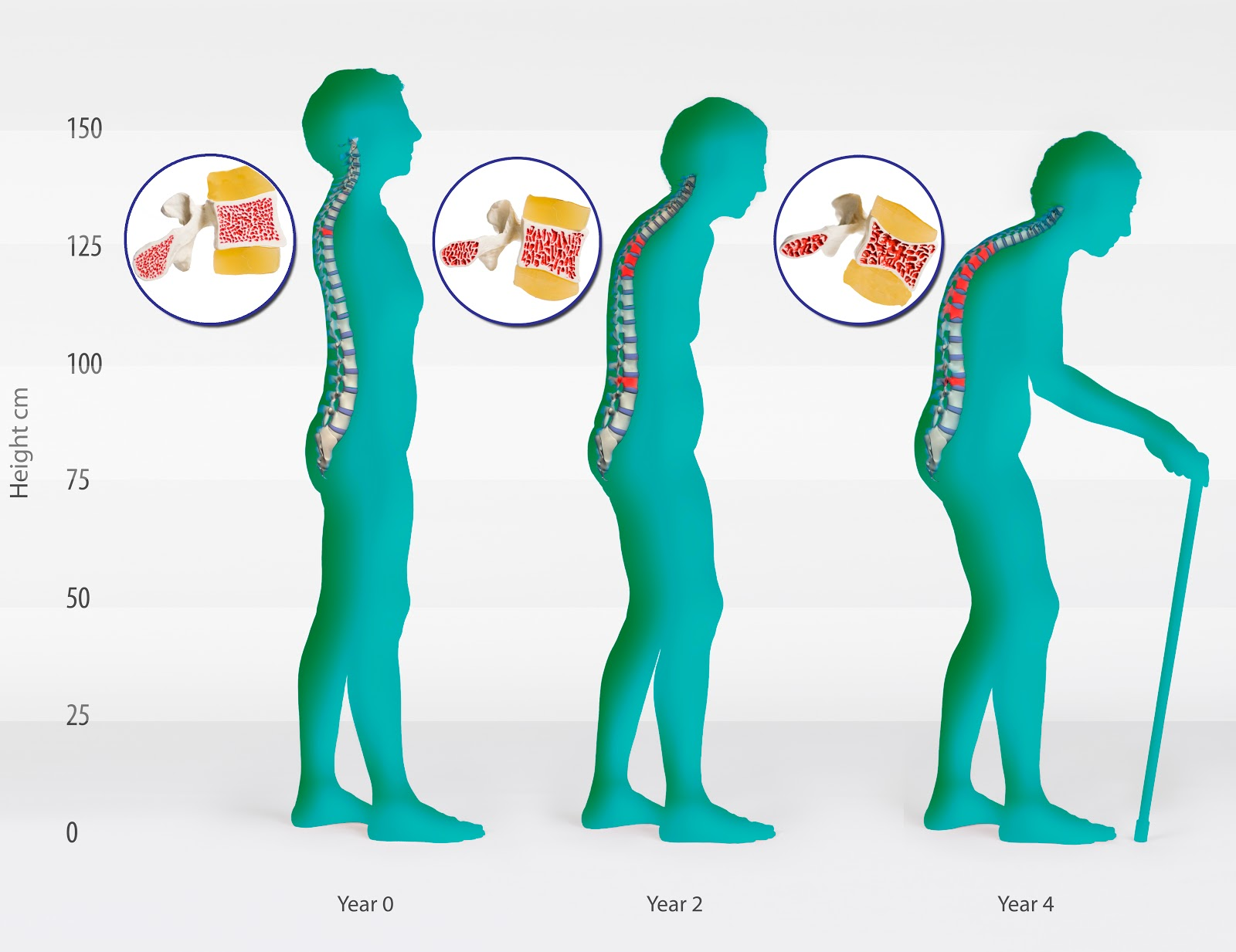 Osteoporosis+Stages Healthy to the Bone