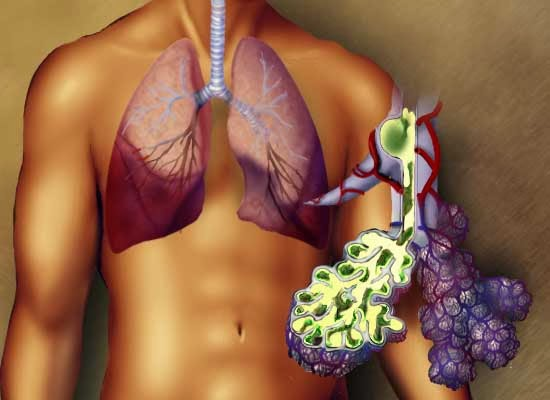 Pneumonia Cured In 3 Hours Using Natural Medicine