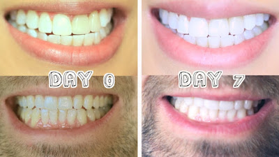 smile-sydney-4-reasons-why-professional-teeth-whitening-is-better
