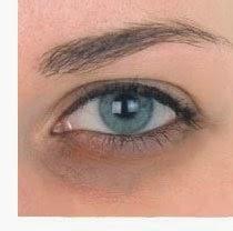Descubra qual o seu tipo de olheira para acabar com ela