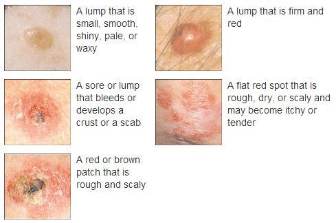 Impetigo in Adults: Condition, Treatments, and Pictures ...