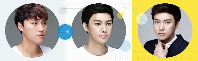 korean best two jaw surgery wonjin