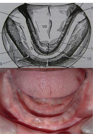 Picture8 Anatomy of mandibular denture bearing area .ppt