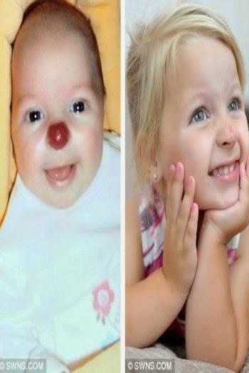 5 Tanda Lahir Paling Aneh di Dunia