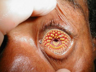 Weird Diseases that You Don't Want to Know