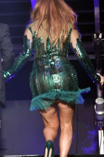 Cellulite Treatment Reviews: Jennifer Lopez Cellulite Blake Lively