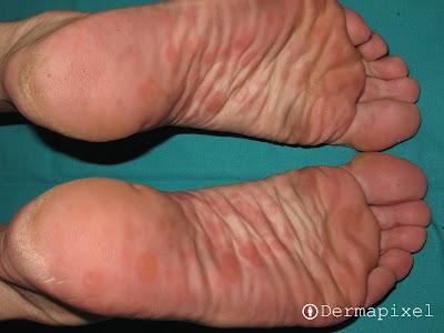 El callista sobre las uñas con la psoriasis