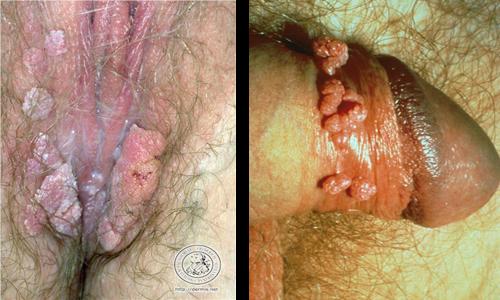 penyakit kutil di kelamin wanita atau pria