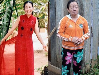 enfermedad envejece mujer