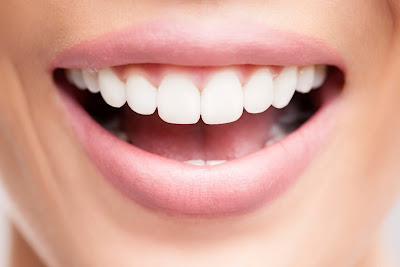 How to Make Your Teeth Whiter in One Day