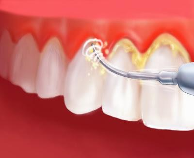 Cara Alami Menghilangkan Karang Gigi Yang Membandel