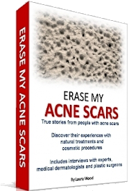 Erase My Acne Scars