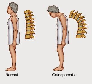 cara mengobati pengapuran tulang, Faktor penyebab osteoporosis, dr. oz indonesia