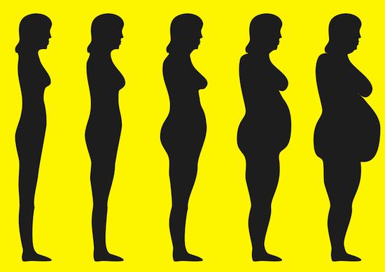 морбидное ожирение что это такое