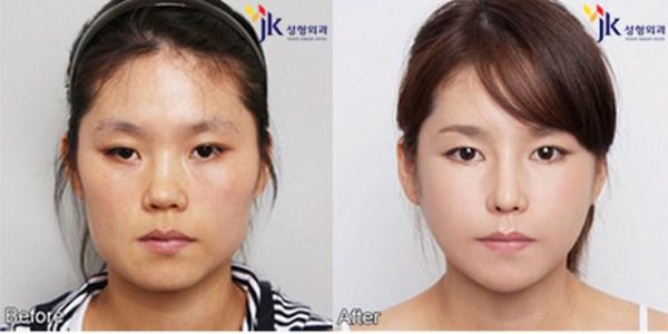 Surcoreanos antes y después cirugía plástica intensiva