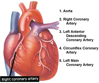 Heart muscle disease daily health tips right coronary artery arteries of the heart diagram of heart arteries right coronary artery of the heart ccuart Gallery