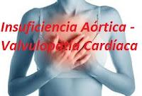 Insuficiencia Aórtica - Valvulopatía Cardíaca