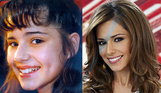 Before And After Celebrity Teeth. look like efore they got