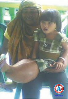 Bocah Tiga Tahun Kena Tumor Ganas