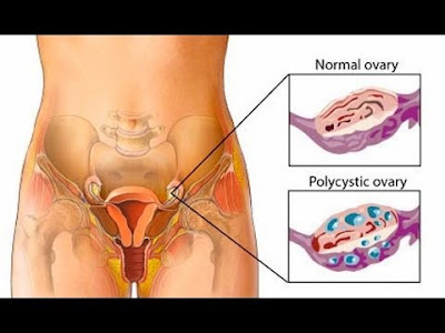 Natural treatment for polycystic ovary syndrome gluten or celiac weight loss acne  Hair and skin Balance the liver
