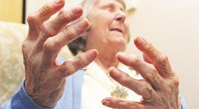 Nguy cơ gây ung thư từ bệnh viêm khớp dạng thấp