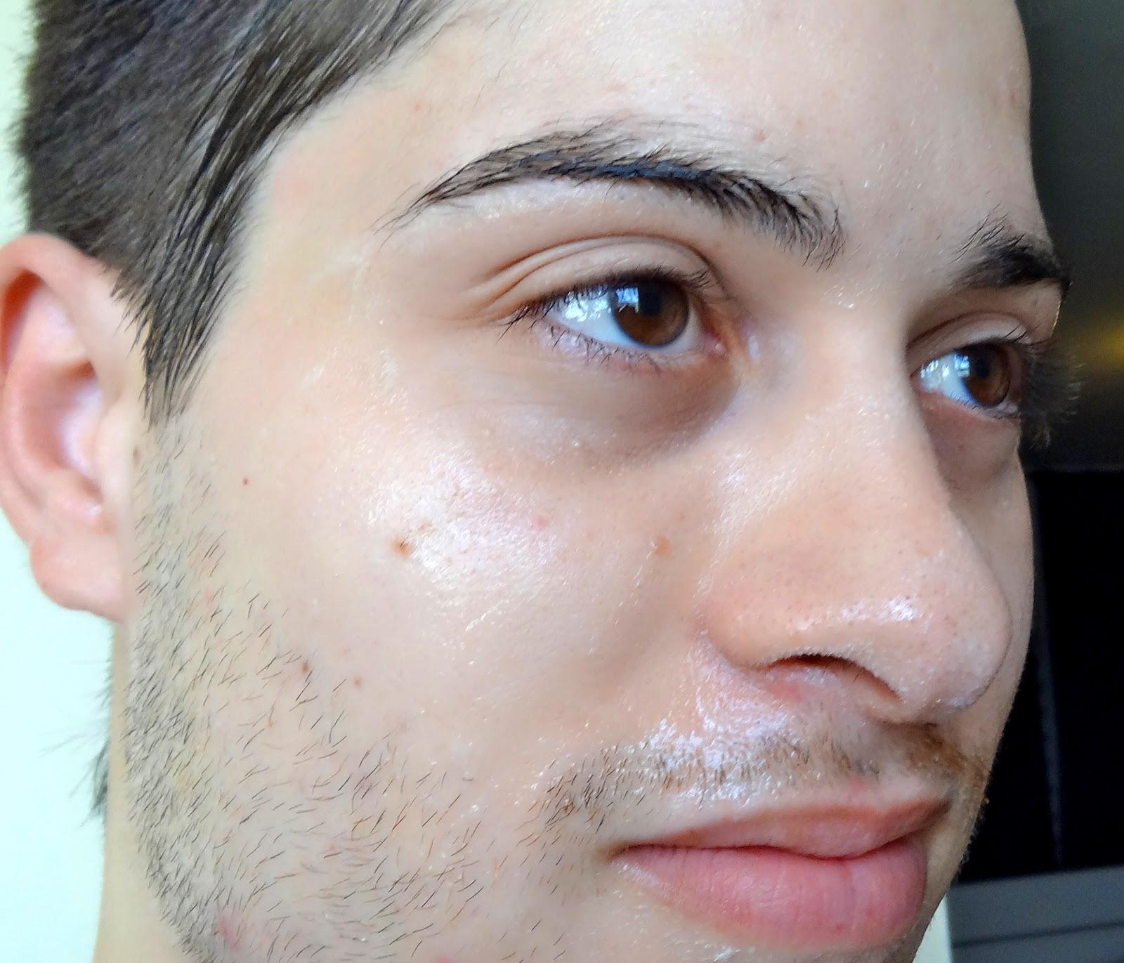 La cosmetología láser de la persona de la foto antes y después