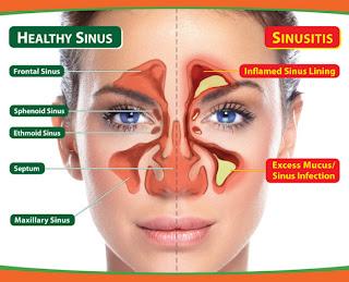 Obat Sinusitis