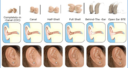 solutions types hearing aids