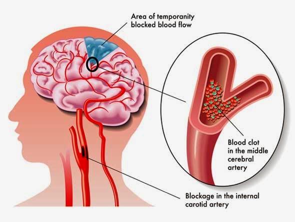 http://www.neurosurgerynow.com/carotid-artery-stenosis.php