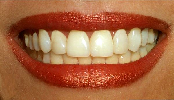 Klikunic 6 Makanan Yang Bisa Bikin Gigi Putih Kayak Gigi Artis
