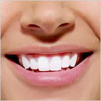 خلطات تبييض الأسنان في المنزل  - تنظيف الضروس اللثة صحة الفم - teeth whitening