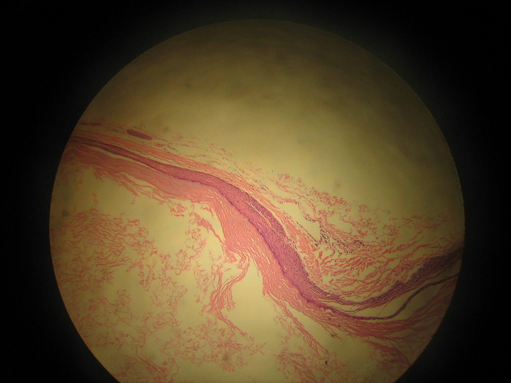 Small epidermoid cysts may also be found in the tongue softpalate    Epidermoid Cysts Neck