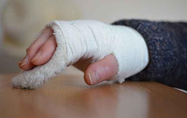 Pengertian Dan Cara Mengobati Osteoartritis