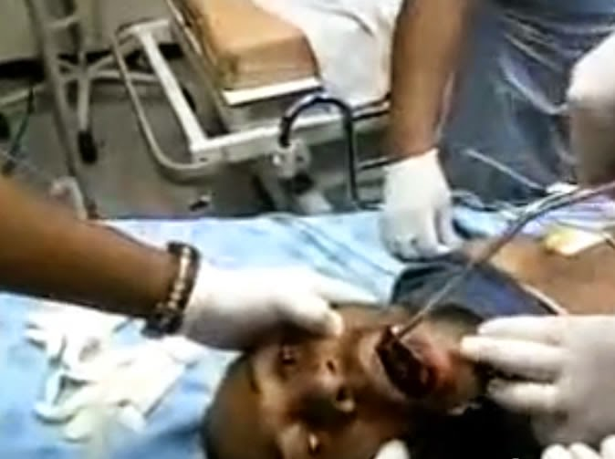 Doctors Remove Mobile Phone Stuck In Man's Mouth in South Africa