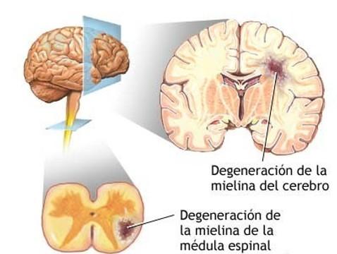 enfermedades del sistema nervioso central pdf