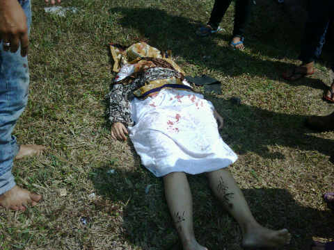 foto istri Saiful Jamil pasca Kecelakaan