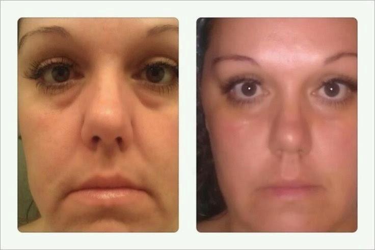 Rejuvenescimento de pele de cara
