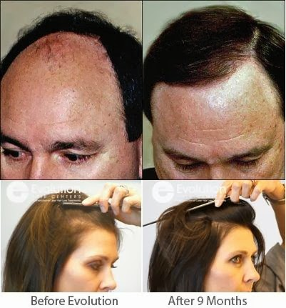 how to reduce hair fall in hindi