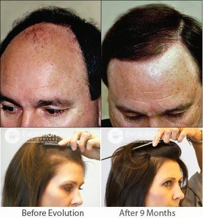 Ayurvedic Hair Loss Treatment Natural Hair Loss Solution