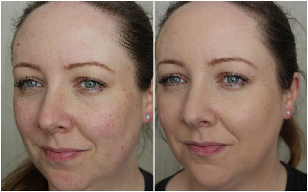 La Roche Posay Anthelios Xl Compact Cream Review Before