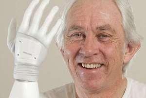 Ini Dia Manusia Pertama di Inggris dengan Tubuh Bionik