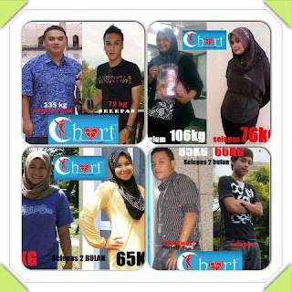 Ngeri Double Triple Stemcell Diabetes Testimoni Singaporean