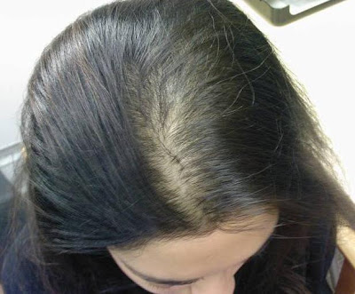 Gastric Bypass Causes Hair Loss: Can It Be Avoided?